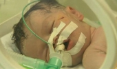 """فيديو: الرضيعة """"شيماء"""" لم تنجح بالتشبث بالحياة في غزة"""
