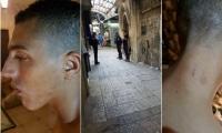 يزيد جبارين من ام الفحم: افراد الشرطة اعتدوا علي بوحشية بالمسجد الاقصى لانني من عائلة جبارين