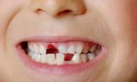 البدء بتقديم علاج الاسنان مجانا للاطفال حتى سن ال 18