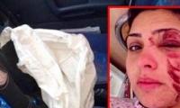 عكا: إصابة ألشابه آيات بلال خالدي جرجوره بانفجار بالون السيارة بشكل فجائي