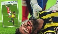 فيديو: اصابه خطيرة كادت تودي بحياة لاعب تركي في الدوري الاوروبي