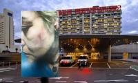 الاعتداء على ممرضة في مستشفى رمبام بحيفا بالبصق والشتائم واللكم وفقدانها الوعي بعد ضربها
